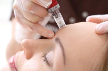 Saiba quais são os benefícios do microagulhamento para sua pele